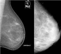 Determining breast tumor from dense breast