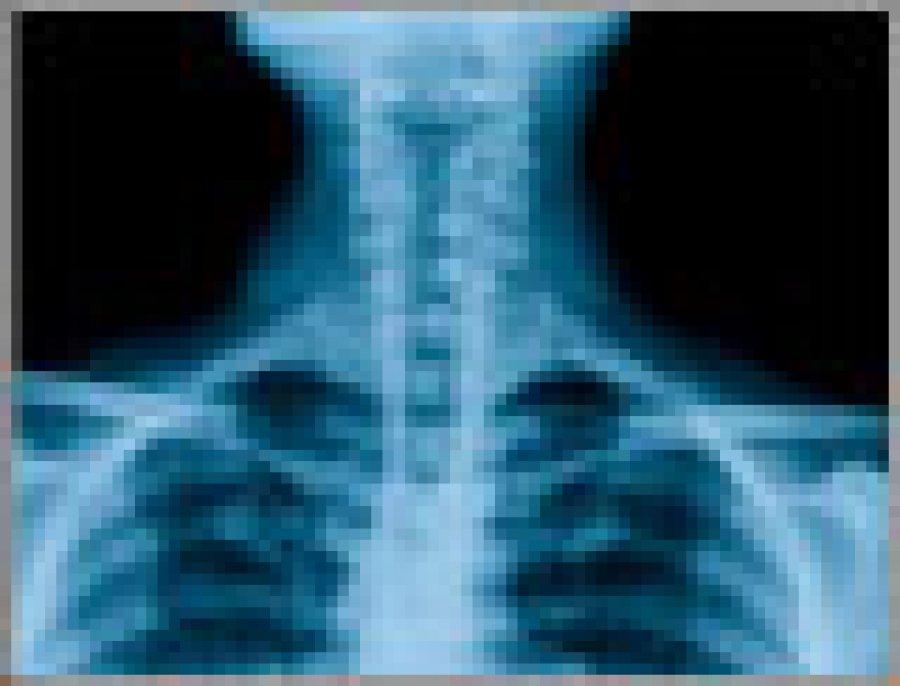 Philadelphia Spinal Cord Injury Lawyers