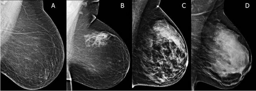 Breasts are heterogeneously dense were